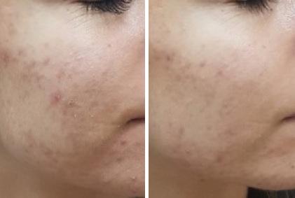 Akne prije tretmana i mjesec nakon tretmana